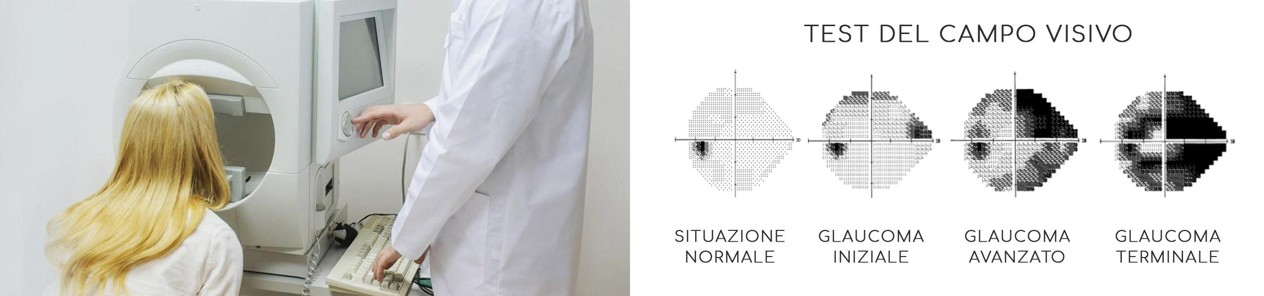 Glaucoma - test del campo visivo! - stileItaliano